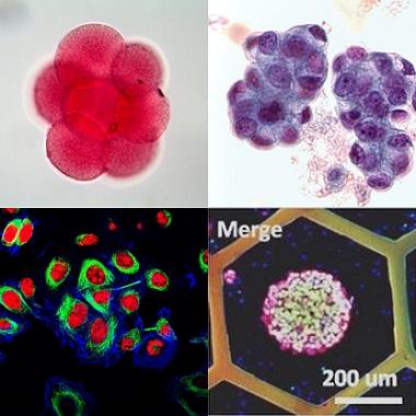 三次元細胞培養 がん細胞 胚
